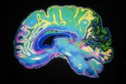Japan-Canada study pinpoints brain's addiction spots